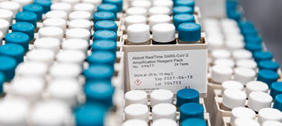 抗击新冠:抗原、分子、血清学——不同新冠检测齐力阻拦新冠大流行