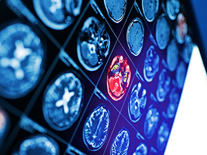 Fighting Stroke With Medical Technology