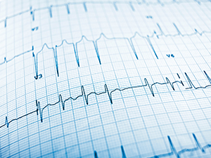 The Future of Heart Health Technology