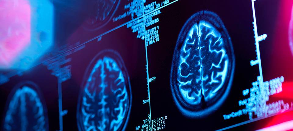 PARTNERING WITH NIH ON BRAIN INITIATIVE