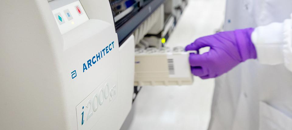 Abbott Launches COVID-19 Antibody Test