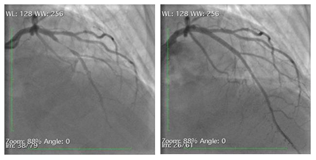 Gary Thompson's left anterior descending coronary artery